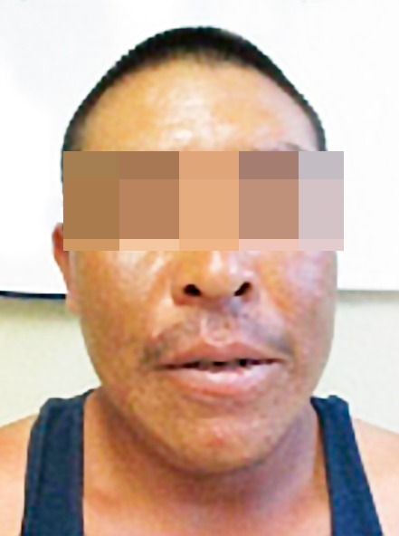 Lleva FEM ante la justicia a acusado de agredir a su pareja sentimental